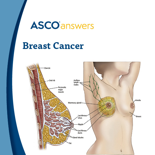Breast Cancer Fact Sheet (pack of 50 fact sheets)