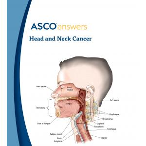 Head and Neck Cancer Fact Sheet ( pack of 50 fact sheets)