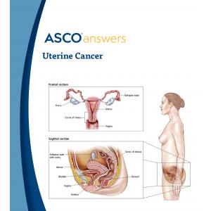 Uterine Cancer Fact Sheet (pack of 50 fact sheets)