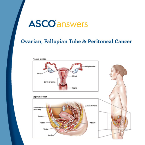 Ovarian Cancer Fact Sheet (pack of 50 fact sheets)