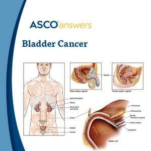 Bladder Cancer (pack of 50 fact sheets)
