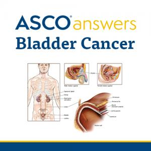 Bladder Cancer Fact Sheet (pack of 50 sheets)