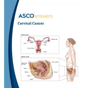 Cervical Cancer Fact Sheet (pack of 50 fact sheets)