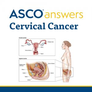 Cervical Cancer Fact Sheet (pack of 50 sheets)