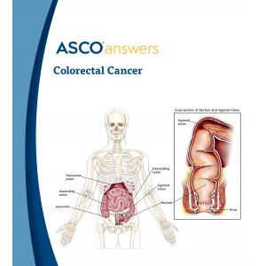 Colorectal Cancer Fact Sheet (pack of 50 fact sheets)