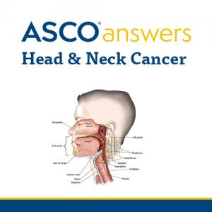 Head and Neck Cancer Fact Sheet (pack of 50 sheets)