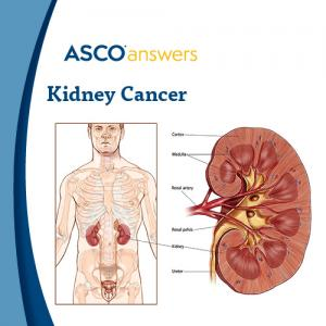Kidney Cancer (pack of 50 fact sheets)