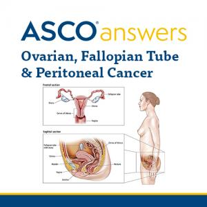 Ovarian, Fallopian Tube, & Peritoneal Cancer Fact Sheet (pack of 50 sheets)