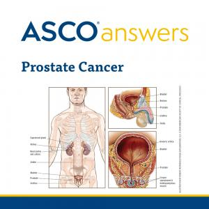 Prostate Cancer Fact Sheet (pack of 50 fact sheets)