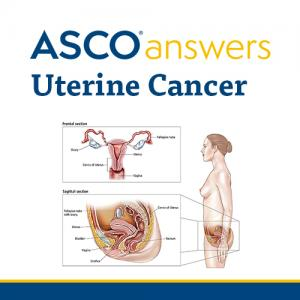 Uterine Cancer Fact Sheet (pack of 50 sheets)
